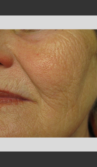 After Photo for Profound Smooth Treatment: Volumize Cheeks -  - Prejuvenation