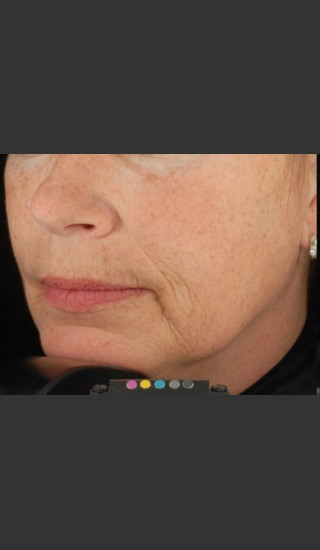 Before Photo for Botox Dermal Fillers and Pigment Removal  - Brian D. Zelickson, M.D. - Prejuvenation