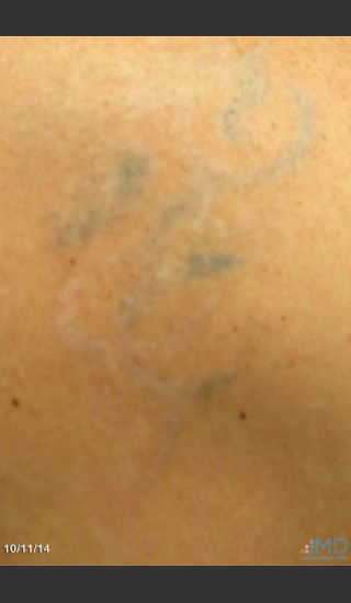 After Photo for Picosure Laser Tattoo Removal of Lion - Margaret Ann Weiss - Prejuvenation