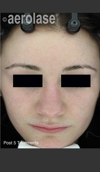 After Photo for NeoClear by Aerolase Acne Treatment - David J. Goldberg, M.D. - Prejuvenation