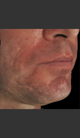 Before Photo for Infini Acne Scar Treatment #13 -  - Prejuvenation