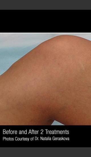 After Photo for Treatment of Leg Veins #316 -  - Prejuvenation