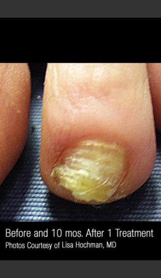 Before Photo for Treatment of Nail Fungus #320 -  - Prejuvenation