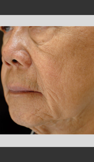 Before Photo for elos Motif IR for Focused Wrinkle Treatment -  - Prejuvenation