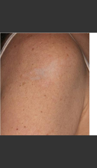 After Photo for Treatment of Shoulder Tattoo - Roy G. Geronemus, M.D. - Prejuvenation