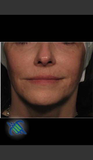 After Photo for Facial Laxity of Lower Face with Profound - Roy G. Geronemus, M.D. - Prejuvenation