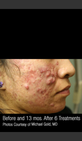 Before Photo for Treatment of Cystic Acne #302 -  - Prejuvenation