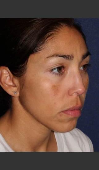 Before Photo for Facial Pigmentation Removal - Dr. Sabrina G. Fabi - Prejuvenation