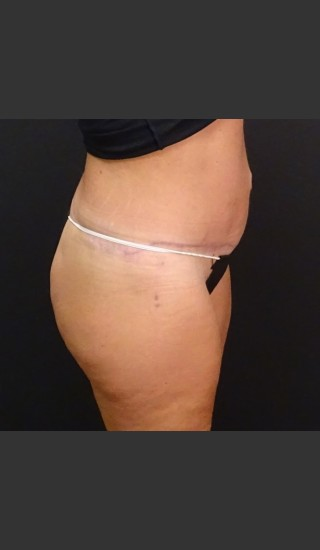After Photo for Circumferential Body Lift Case #1 - Gallaher Plastic Surgery & Spa MD - Prejuvenation