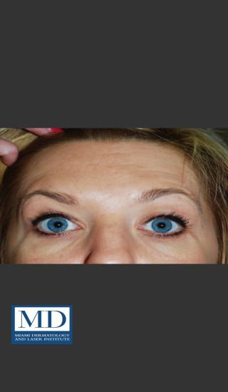 After Photo for Neurotoxin Treatment of Forehead 130 - Jill S. Waibel, MD - Prejuvenation