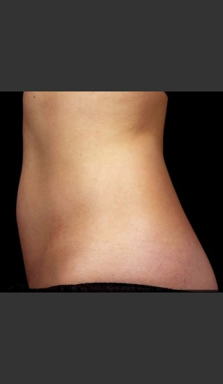 After Photo for SculpSure Abdomen - Bruce E Katz, M.D. - Prejuvenation
