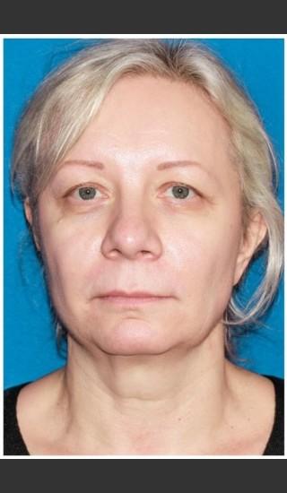 Before Photo for Facelift - Case 8 - Konstantin Vasyukevich, MD - Prejuvenation