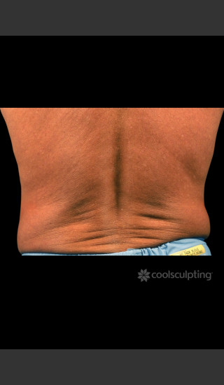 Before Photo for CoolSculpting Before & After on Man -  - Prejuvenation