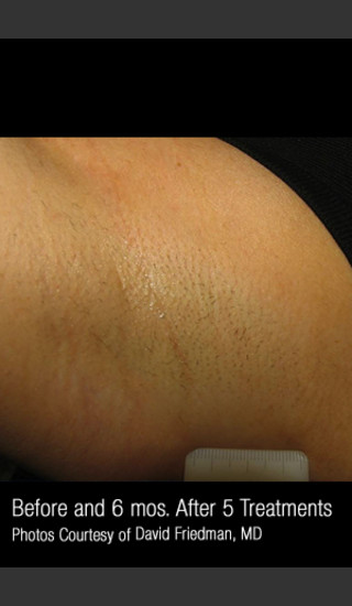 After Photo for Hair Removal #311 -  - Prejuvenation