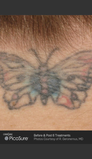 Before Photo for Tattoo Removal of Butterfly -  - Prejuvenation