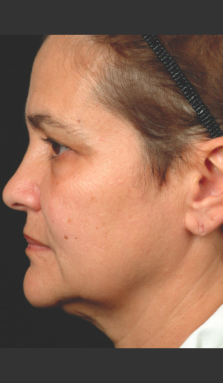 After Photo for Thermage Procedure Before and After II -  - Prejuvenation