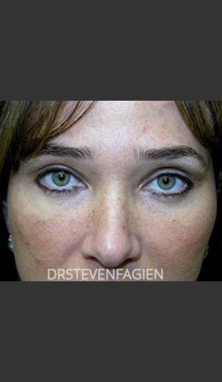 After Photo for Upper and Lower Blepharoplasty - Patient 6 - Steven Fagien, MD - Prejuvenation