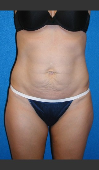 Before Photo for Tummy Tuck Case #2 - South Coast Plastic Surgery - Prejuvenation
