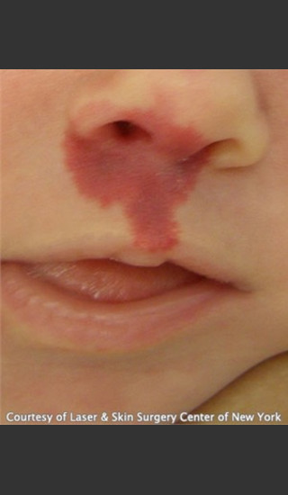 Before Photo for Treatment of Mouth Port Wine Stain  - Roy G. Geronemus, M.D. - Prejuvenation
