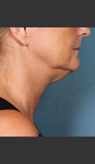 Before Photo for Kybella Treatment 55 Year Old Female -  - Prejuvenation
