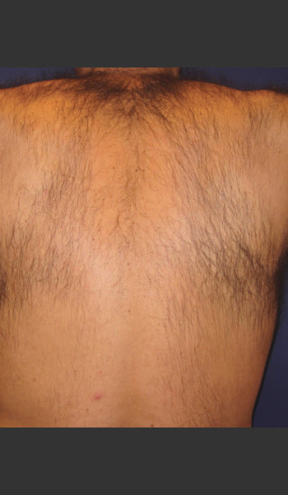 Before Photo for Laser Hair Removal - James Newman - Prejuvenation