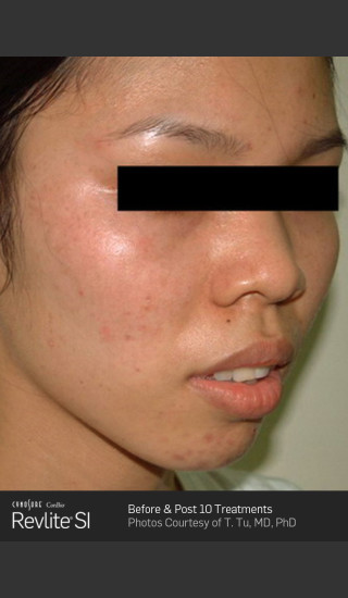 After Photo for Before and After Revlite SI Series of Treatments for Melasma -  - Prejuvenation