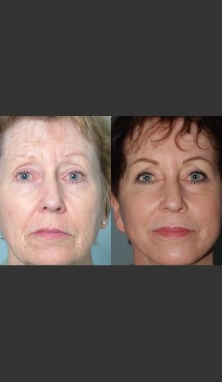 Before Photo for Full Face Rejuvenation - Mark B. Taylor, M.D. - Prejuvenation