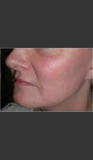 After Photo for Sun Damage and Acne Scarring - Christopher B. Zachary, MD - Prejuvenation