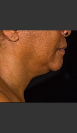 Before Photo for SculpSure Submental - Bruce E Katz, M.D. - Prejuvenation