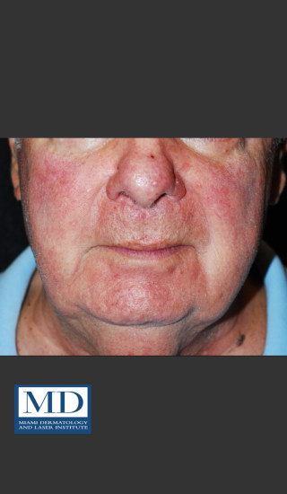 After Photo for Rosacea Treatment 102 - Jill S. Waibel, MD - Prejuvenation