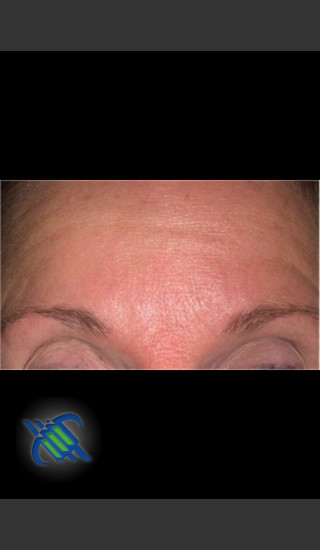 Before Photo for Treatment of Fine lines and Wrinkles - Roy G. Geronemus, M.D. - Prejuvenation