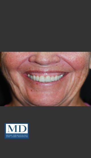 Before Photo for Neurotoxin Gummy Smile 129 - Jill S. Waibel, MD - Prejuvenation