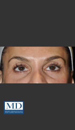 Before Photo for Midfacial Filler 136 - Jill S. Waibel, MD - Prejuvenation