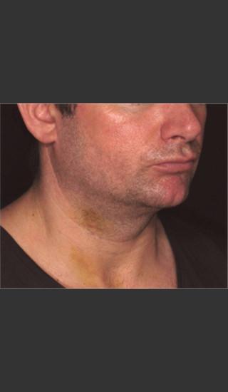 After Photo for Treatment of Neck Contour -  - Prejuvenation