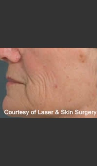 Before Photo for Treatment of Lines and Wrinkles with Fraxel - Roy G. Geronemus, M.D. - Prejuvenation