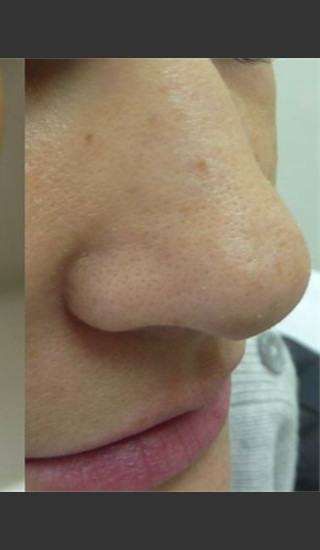 After Photo for Treatment of Nose Acne Scar -  - Prejuvenation