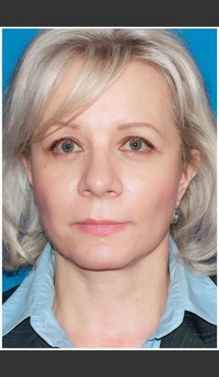After Photo for Facelift - Case 8 - Konstantin Vasyukevich, MD - Prejuvenation