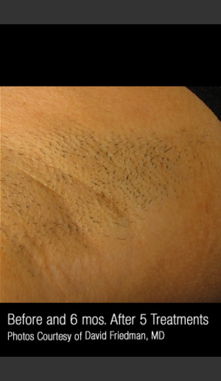 Before Photo for Hair Removal #313 -  - Prejuvenation