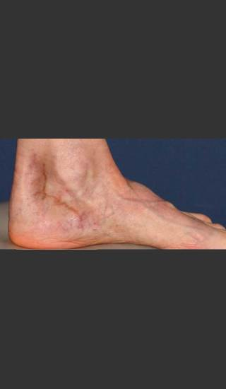 Before Photo for Treatment of Pigmented Lesion on Foot - Mitchel P. Goldman M.D. - Prejuvenation