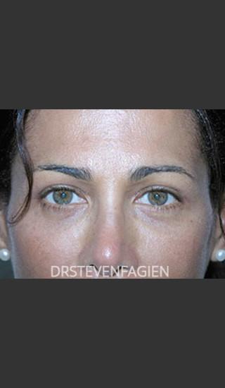 After Photo for Blepharoplasty - Patient 2 - Steven Fagien, MD - Prejuvenation
