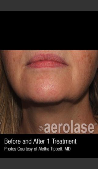 Before Photo for Skin Tightening #347 -  - Prejuvenation