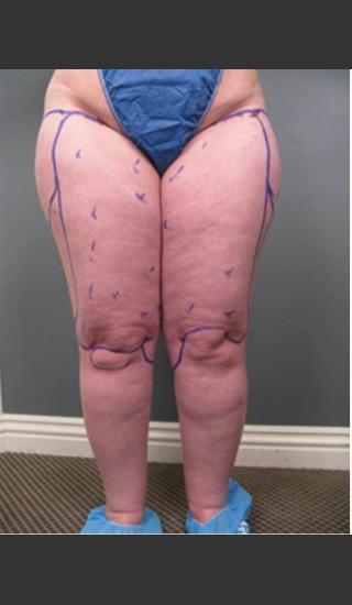 Before Photo for Circumferential Liposuction #46 - Dr. David Amron - Prejuvenation