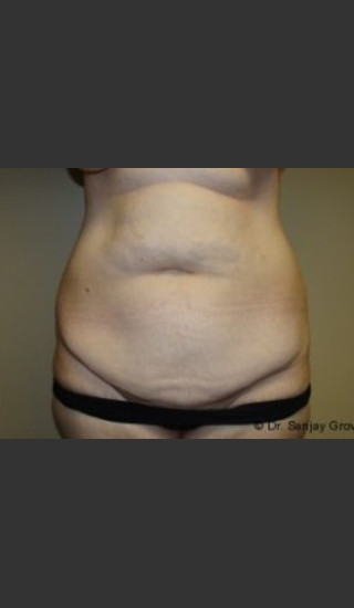 Before Photo for Tummy Tuck 7163 - Sanjay Grover MD FACS - Prejuvenation