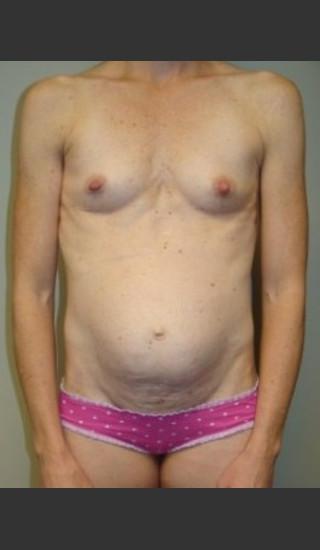 Before Photo for Mommy Makeover 8468 - Sanjay Grover MD FACS - Prejuvenation