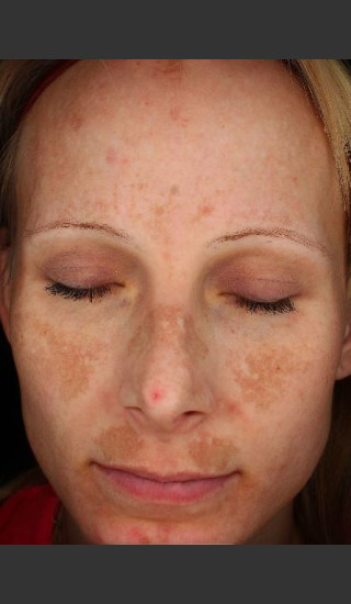 Before Photo for Photoaging and Melasma  - Paul M. Friedman, M.D. - Prejuvenation