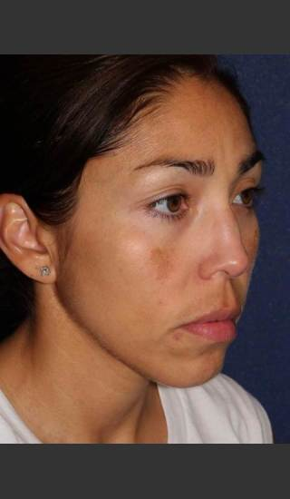 After Photo for Facial Pigmentation Removal - Dr. Sabrina G. Fabi - Prejuvenation