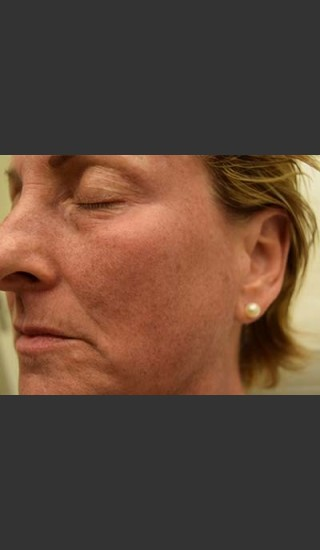 Before Photo for Fraxel Laser Treatment for Pigmentation - Skin Cancer Specialists P.C. & Aesthetic Center - Prejuvenation
