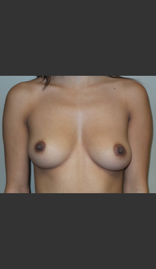 Before Photo for Silicone Breast Augmentation - Sanjay Grover MD FACS - Prejuvenation