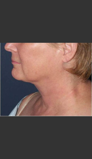 After Photo for Facial Liposculpture - William F. Groff, M.D. - Prejuvenation