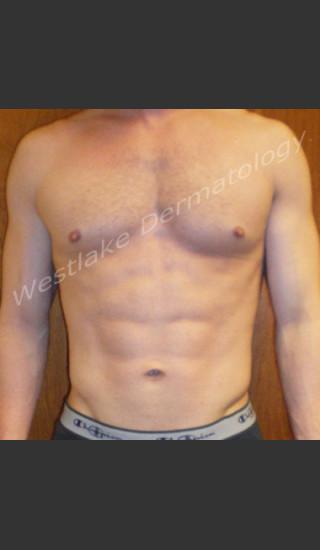 After Photo for SmartLipo Liposuction of Male Abdomen - Gregory A Nikolaidis - Prejuvenation